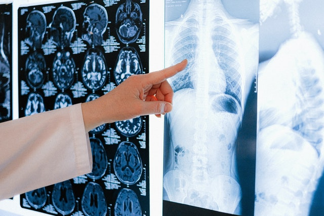 What Does Lumbar Spine MRI Scanning Tell Ss, and Should We Suggest it?